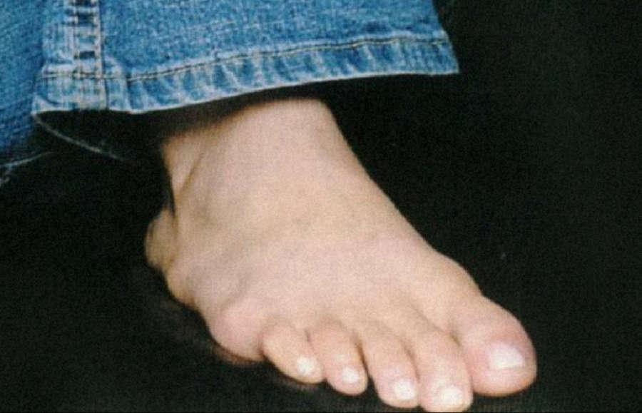 Maro Lytra Feet