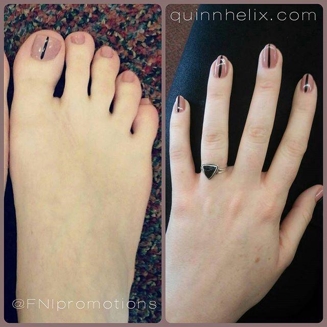 Quinn Helix Feet