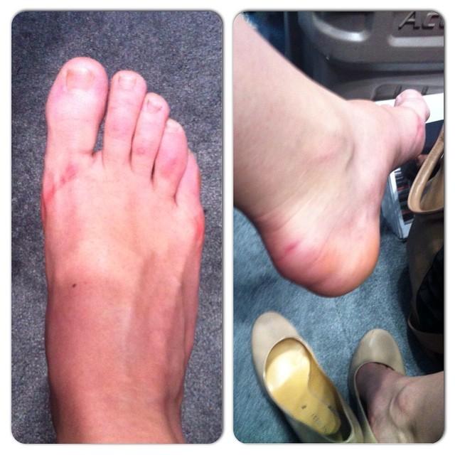 Nora Sommerkamp Feet