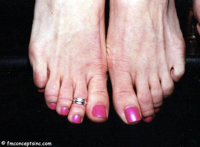 Shay Ruskin Feet